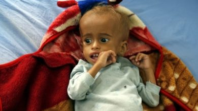 Photo of Govt to launch nutrition drive for Severely Acute Malnourished children